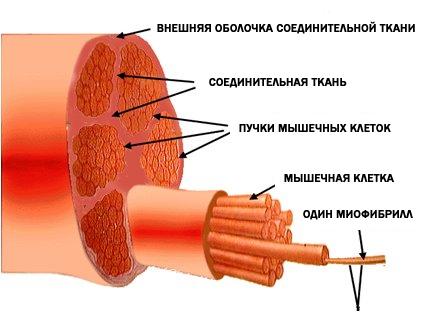 gipertrofia